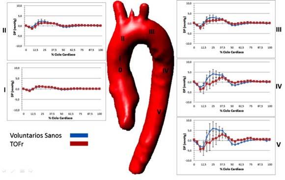 Medición de presiones relativas en aorta torácica y arteria pulmonar ...