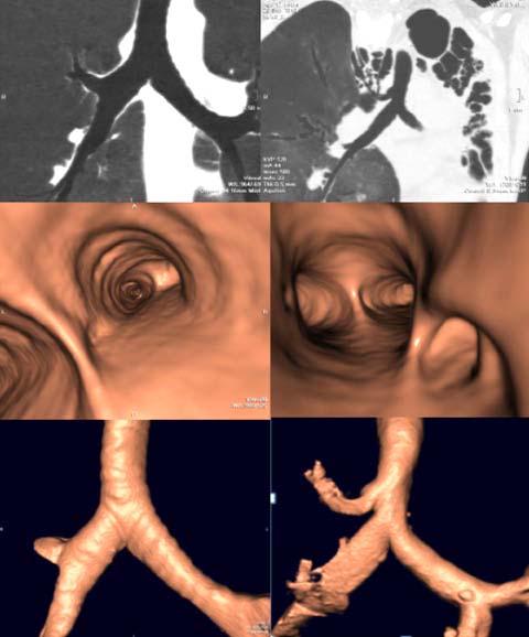 Variantes anatómicas de la segmentación bronquial, prevalencia y ...