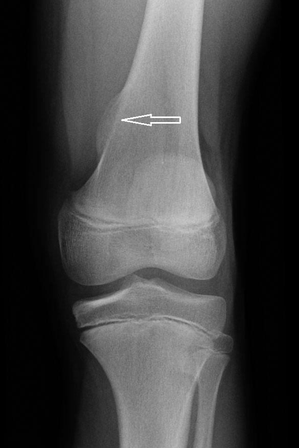 Osteocondroma: diagnóstico radiológico, complicaciones y variantes