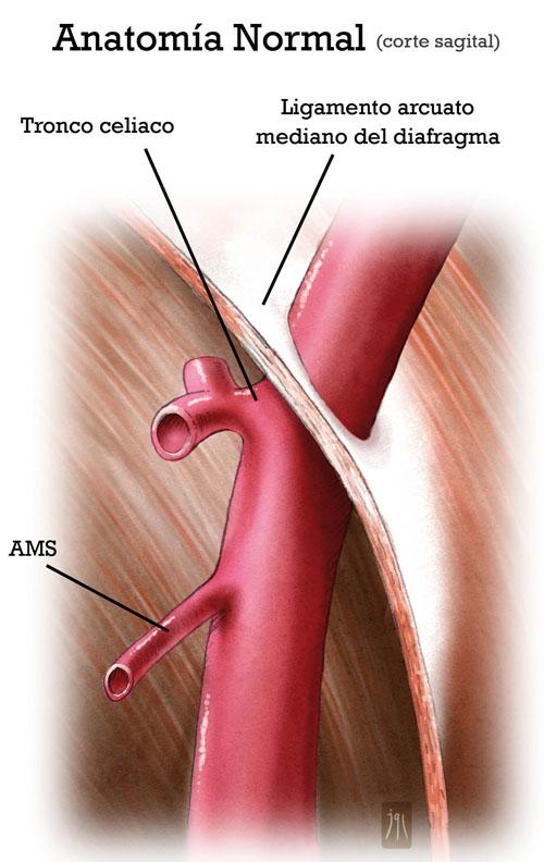 Síndrome del ligamento arcuato medio: review article