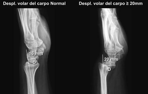 Deformidad de Madelung: Criterios actuales en radiografía simple
