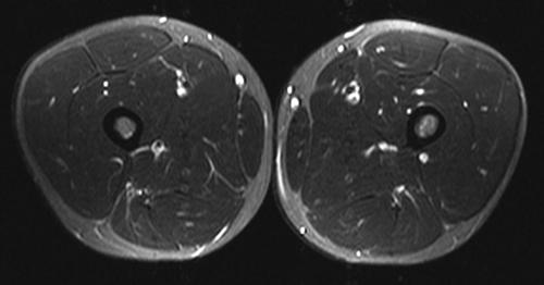 Utilidad de la resonancia magnética en el diagnóstico de las ...