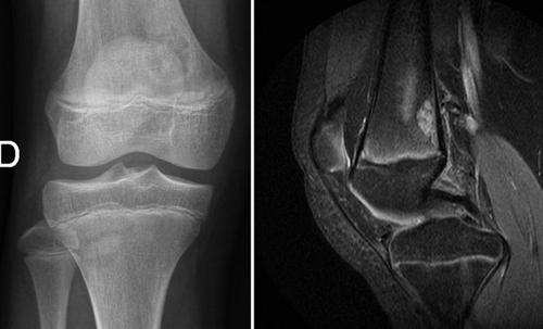 imagen de resonancia magnetica de rodilla normal