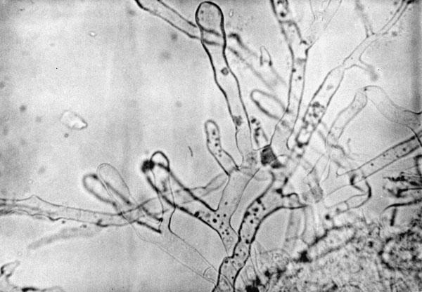 Diagnóstico rápido de dos casos de mucormicosis con tinción de ...