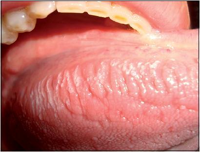 infecciones bacterianas de la cavidad oral pdf