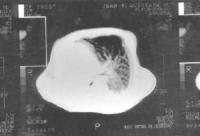 agenesia pulmonar que es