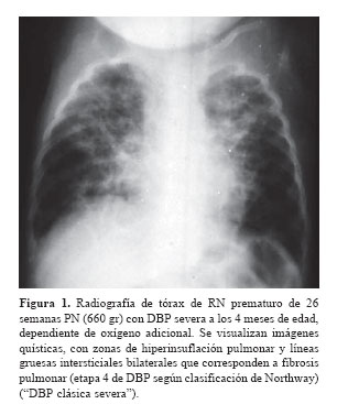hipertensión craneal - Información general Un