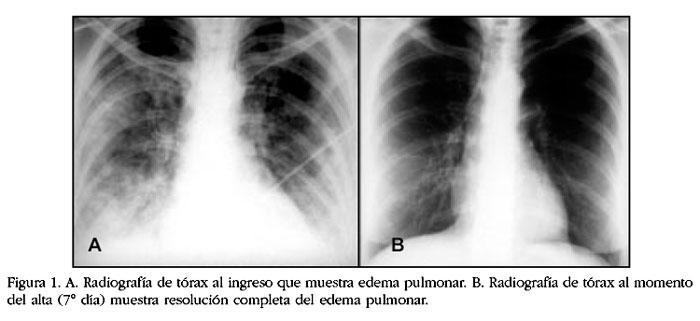Severo edema pulmonar bilateral