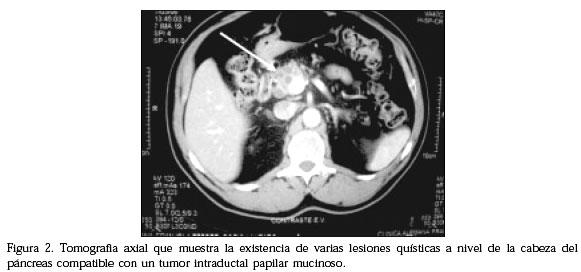 Tumores quísticos del páncreas