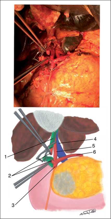 Arteria hepática izquierda de arteria gastroduodenal: Un desafío ...