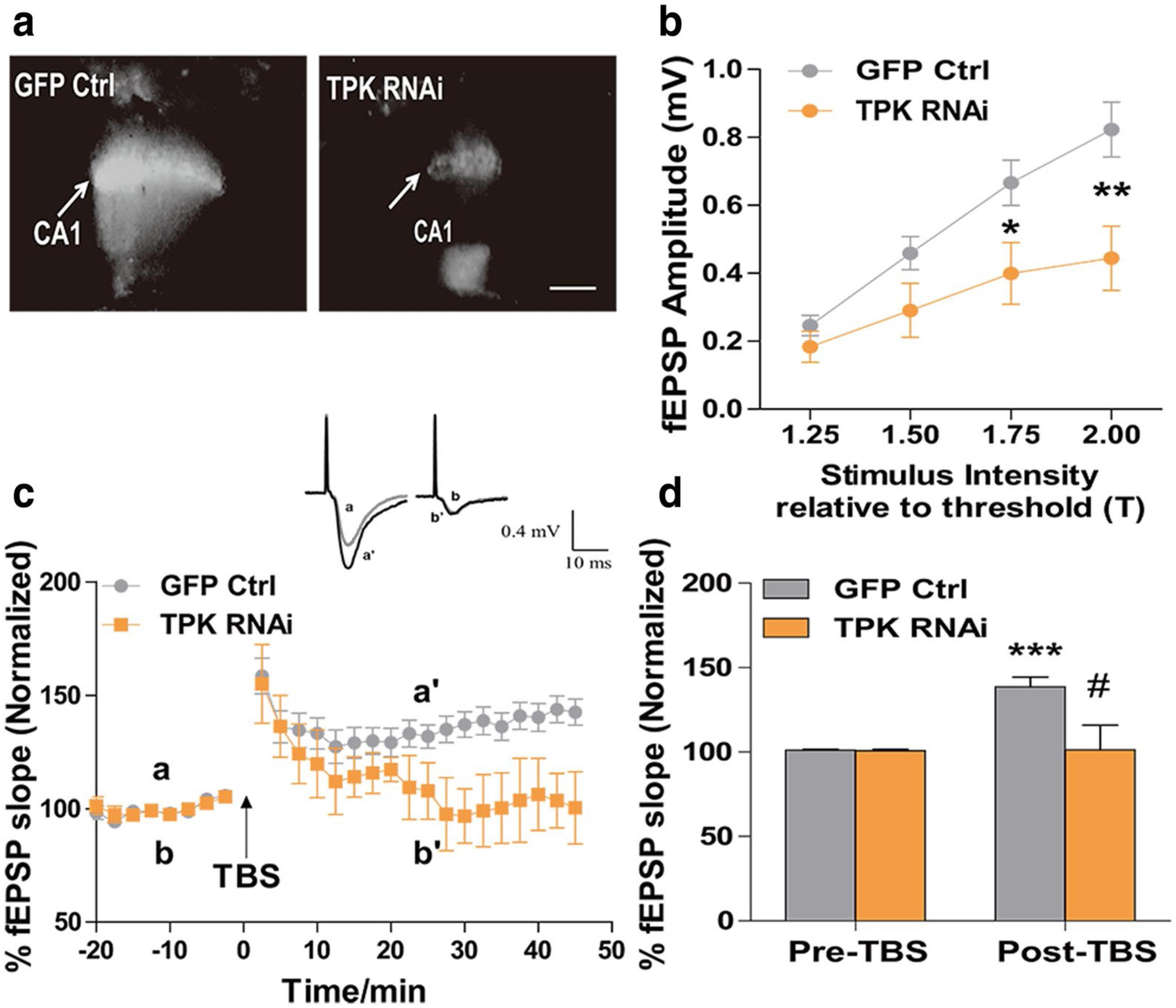 Thiamine deficiency contributes to synapse and neural circuit defects