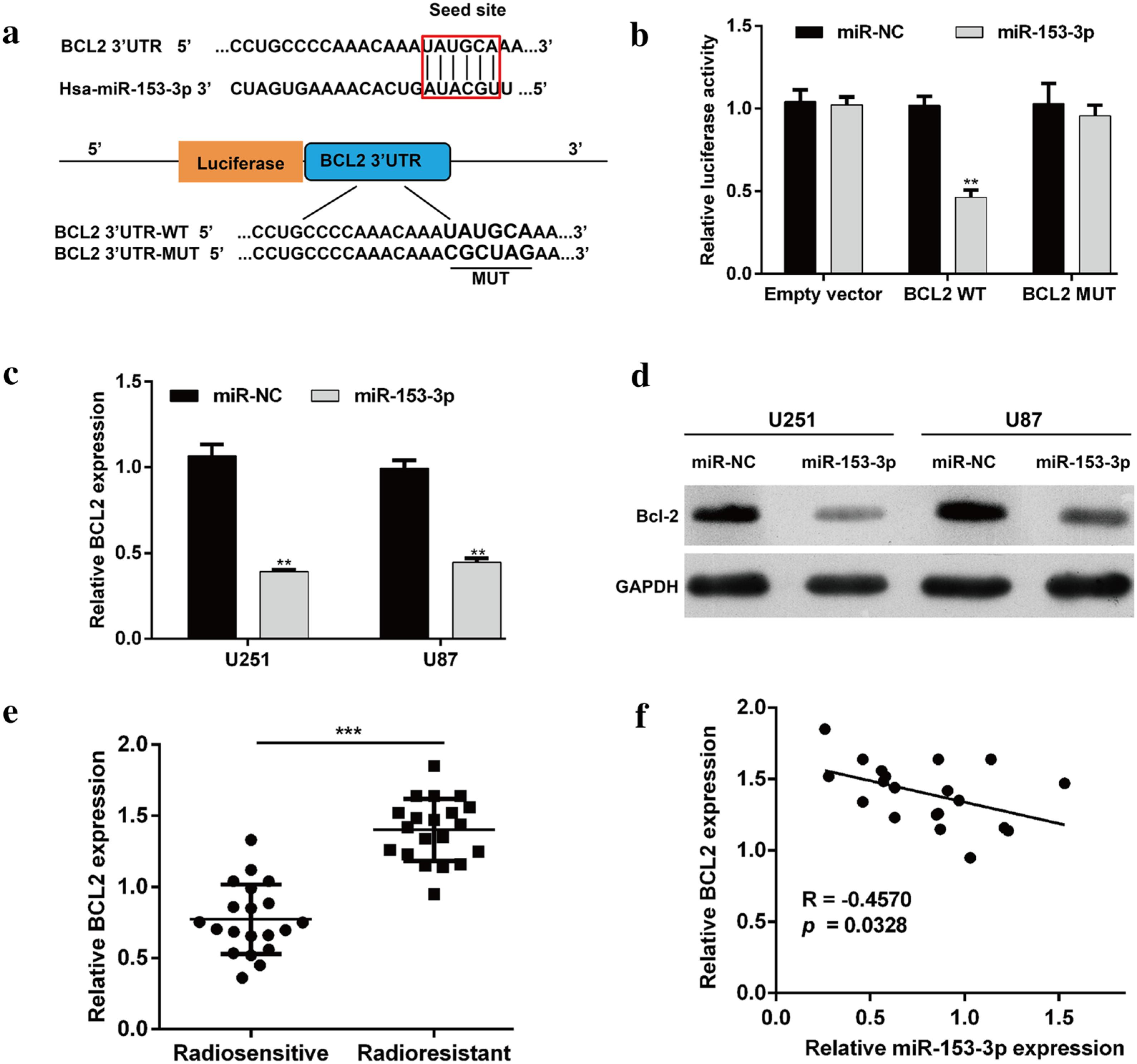 MicroRNA-153-3p enhances cell radiosensitivity by targeting