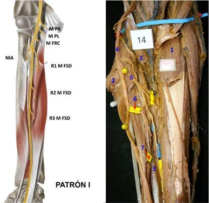 Inervación Del Músculo Flexor Superficial De Los Dedos