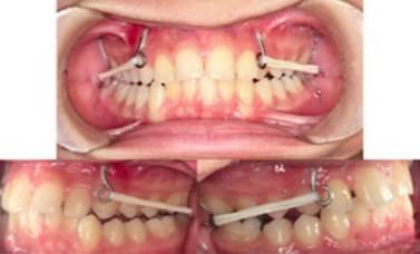 Una Descripcion General Y Actualizada De Miniplacas Y Minitornillos Efectos Dentoalveolares Y Esqueleticos