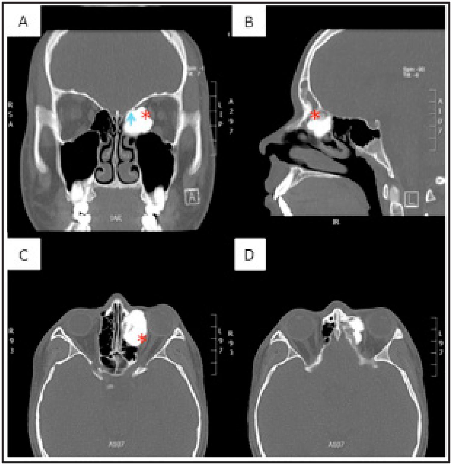 Manejo endoscópico de osteoma etmoidal con extensión orbitaria: A ...