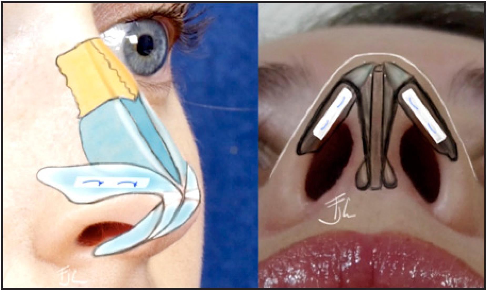 Válvula nasal en rinoplastía