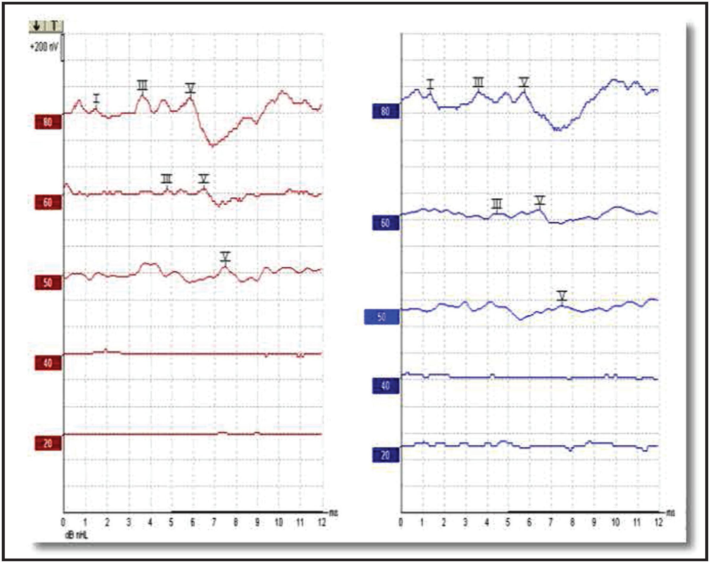 Correlación Del Umbral De Potencial Evocado Auditivo De Tronco Cerebral Con El Umbral De Potencial Evocado Auditivo De Estado Estable En Pacientes Hipoacúsicos