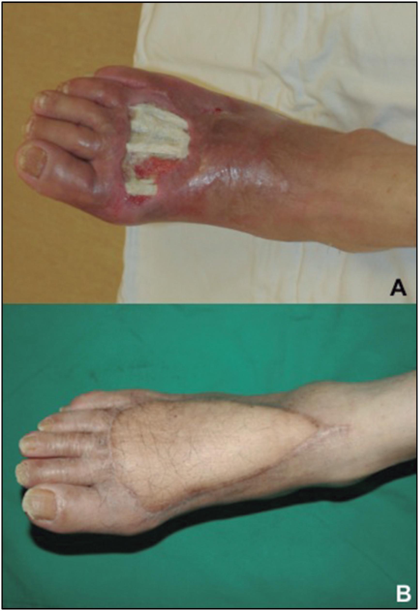Enfermedad del diabético 14 tempranos pie de signos