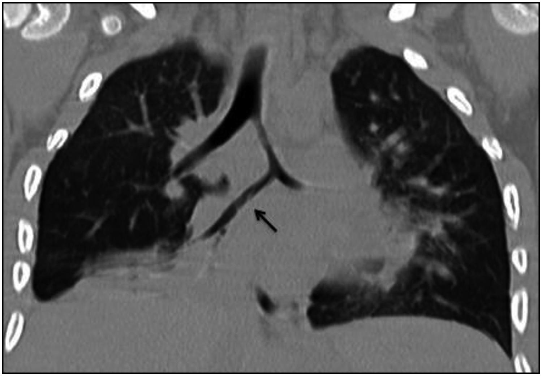 Bronquio cardíaco accesorio y otras variantes de la anatomía tráqueo ...