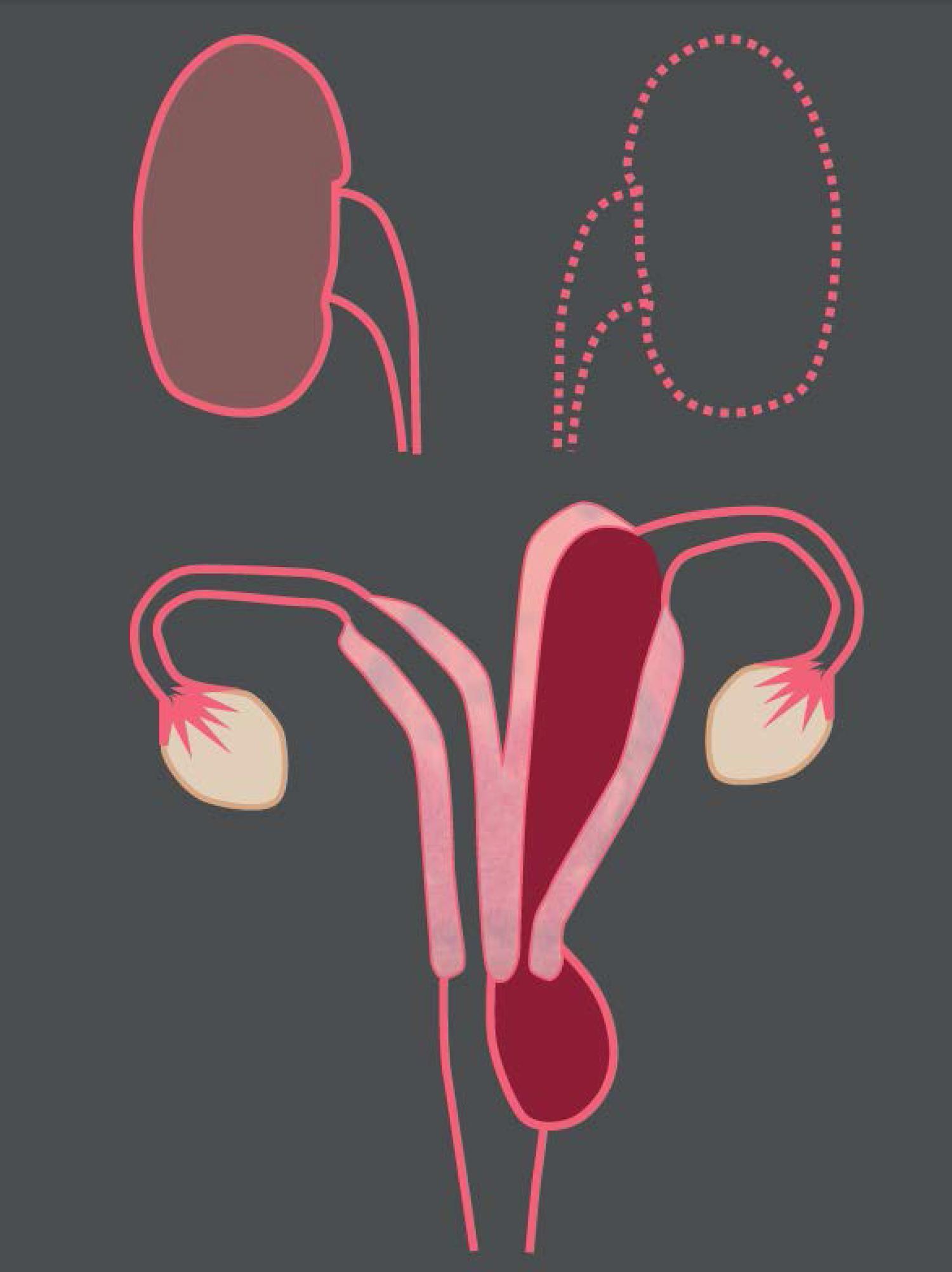 Agenesia del tercio inferior de la vagina.