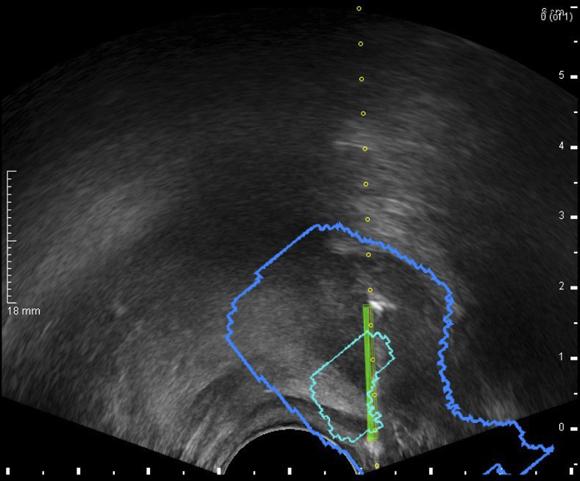 protocolo rm prostata