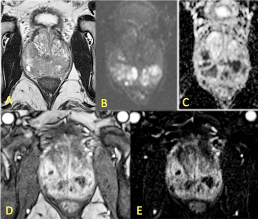 prostatitis granulomatosa crónica