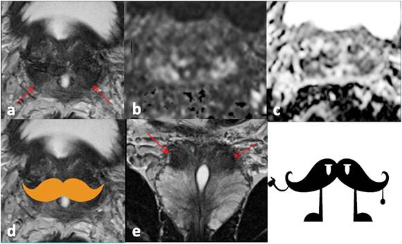 inflamación crónica del estroma prostático